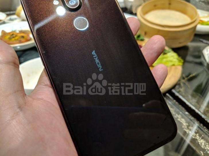 Nokia 7.1 Plus live image leaks